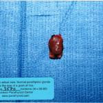 Parathyroid Tumor
